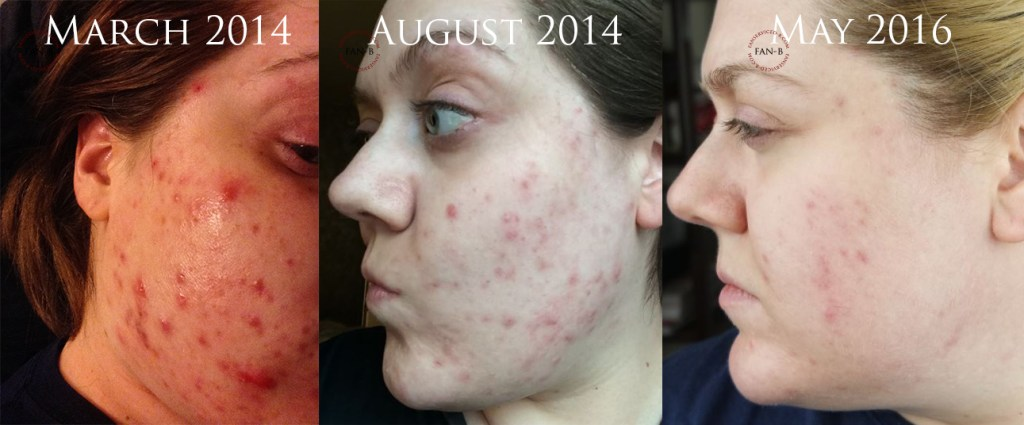 The Road to Accutane