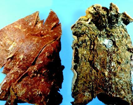 left lung is normal, right lung shows cancer from smoking