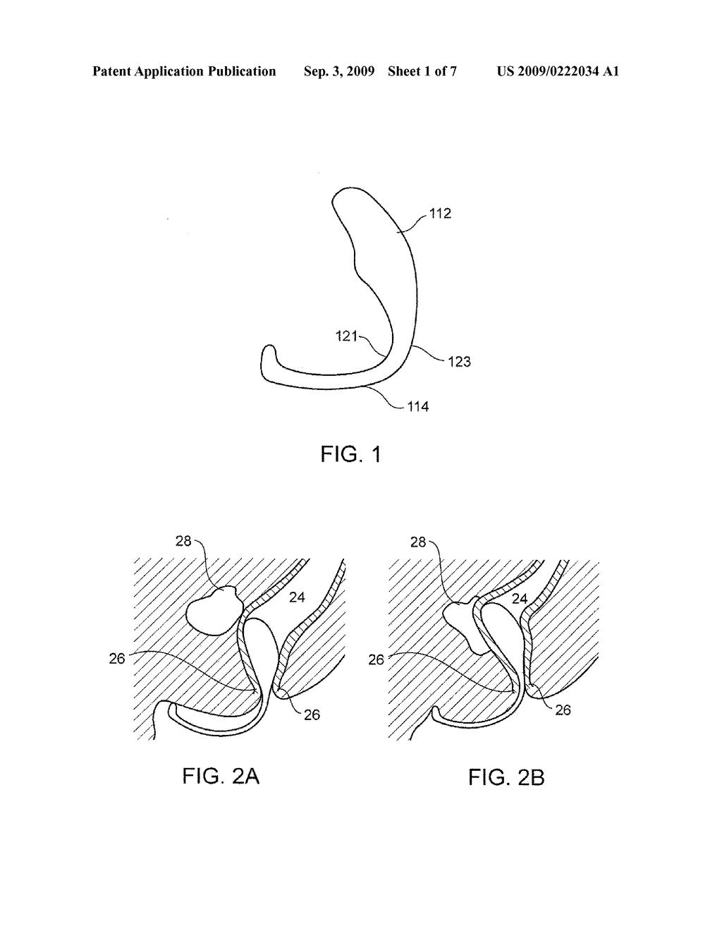 massage technique diagram roketa 150cc scooter wiring prostate xodupu88 痞客邦