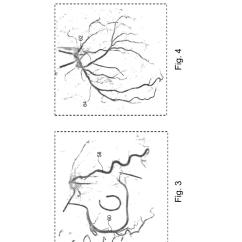Coronary Anatomy Diagram 3 Phase Star Delta Wiring Artery Hairstylegalleries