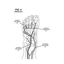Foot Pulses Diagram Citroen Berlingo Wiring Manual Pulse Sites Images Reverse Search