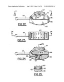 Lumbar Disc Replacement Implant for Posterior Implantation