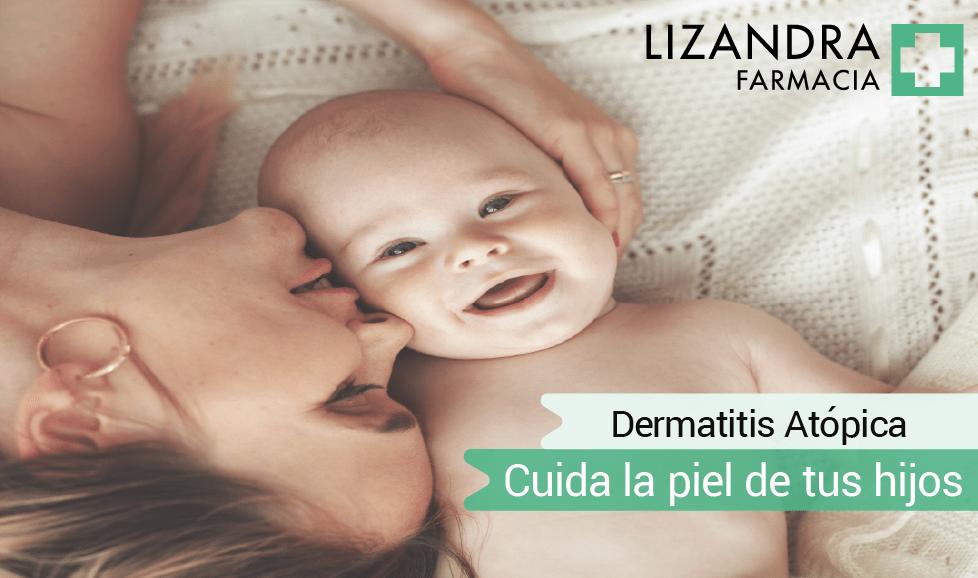 Dermatitis atópica en niños