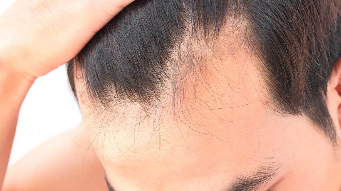 Perdita capelli: cause e rimedi
