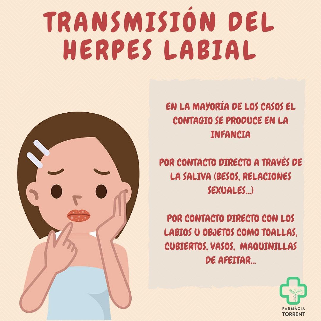 Causas de las herpes labiales