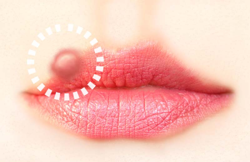 como se contagia el herpes simple labial