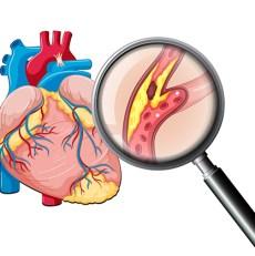 Il Colesterolo spiegato in modo facile