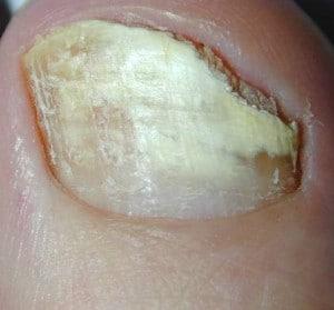 Le unghie exfronzute che questo e come trattare