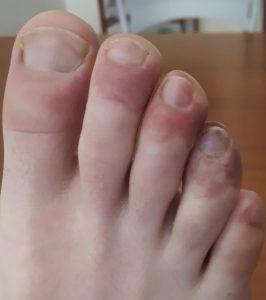 Risultato immagini per lesioni vasculitiche mani e piedi