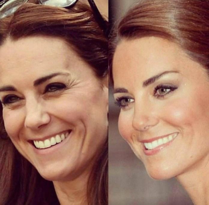 Kate Middleton em antes e depois dos procedimentos estéticos