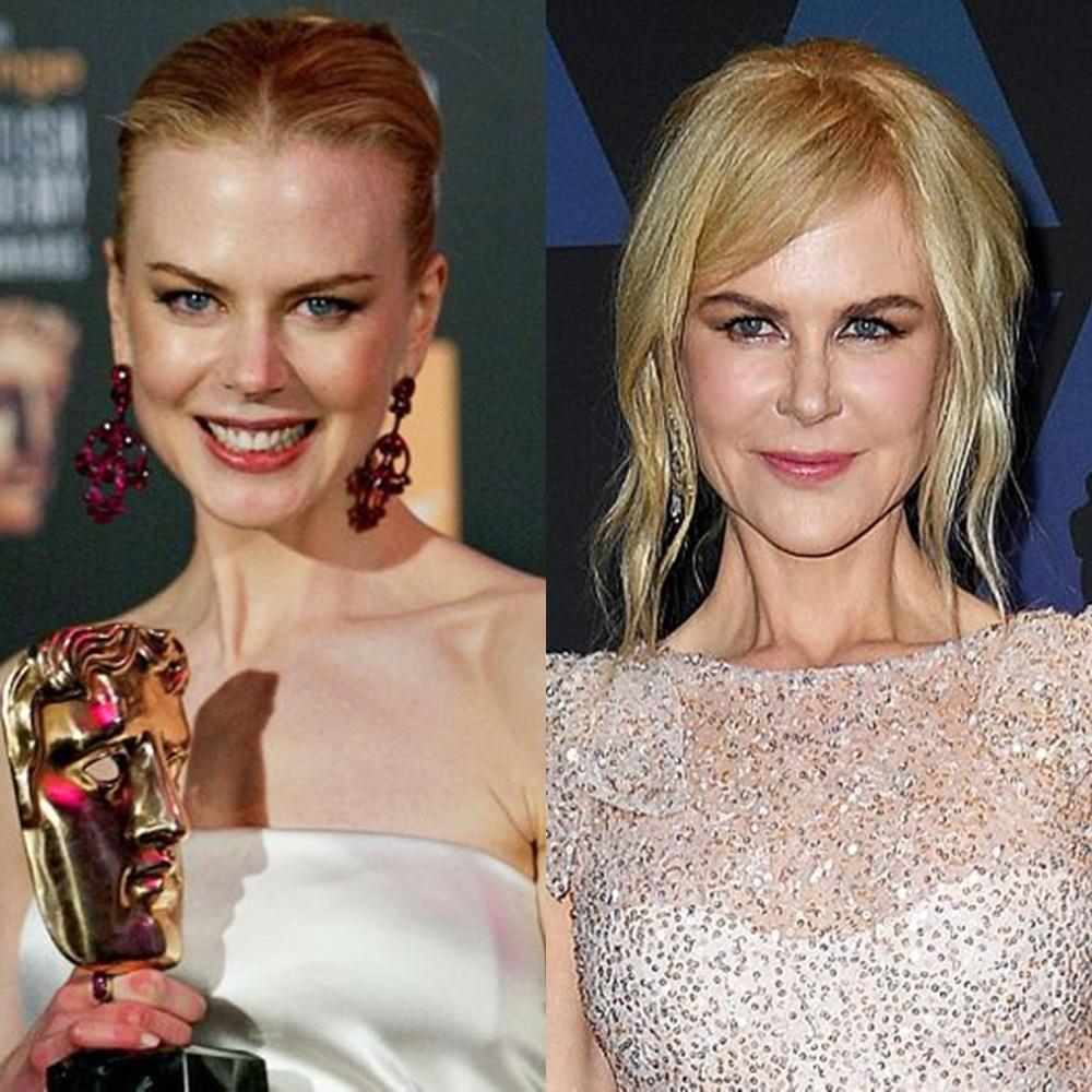 Nicole Kidman contornando o rosto.