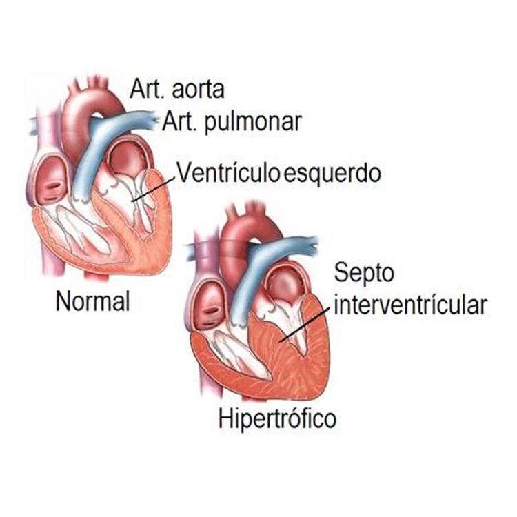 O que é a miocardiopatia hipertrófica? - Imagem meramente ilustrativa.