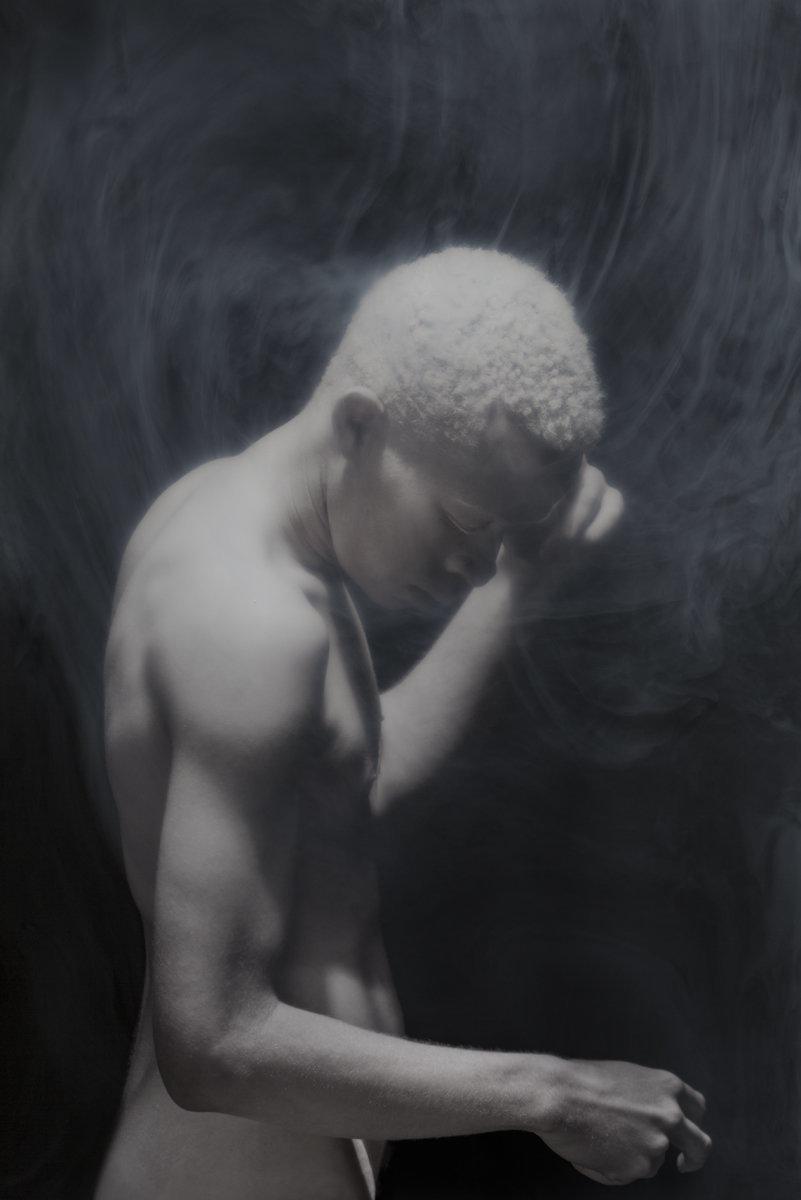 albino photography (11)