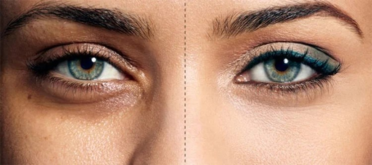Sunken Eyes - What Can You Do To Conceal Them?