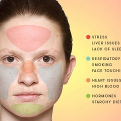 Hormonal Acne Diagram 7 Pin Wiring Truck Face Mapping The Best Guide To Find Causes And Solutions Map