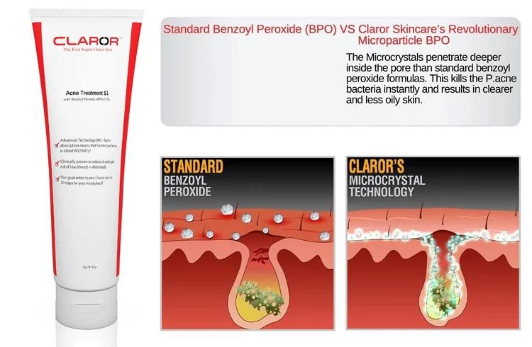 10 Best Benzoyl Peroxide Acne Treatments