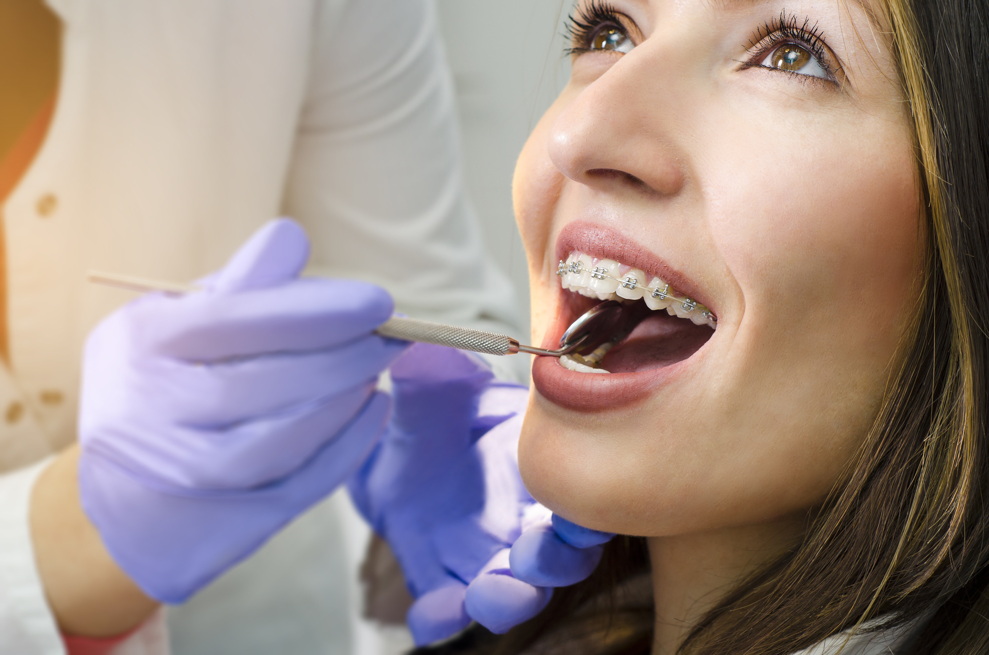 How Do I Choose the Best Orthodontist in My Local Area?