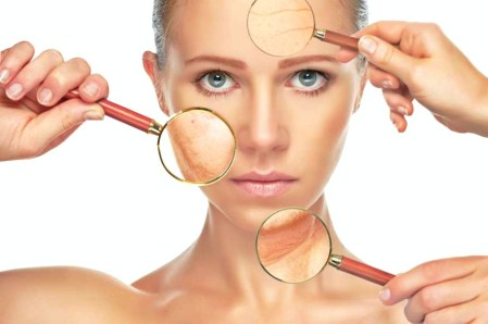 skin pigmentation natural peels