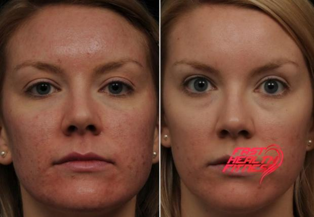 apple-cider-vinegar-for-acne-scars-before-and-after