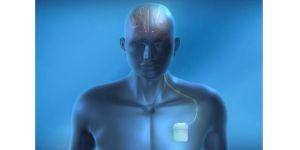 brain activity stimulator