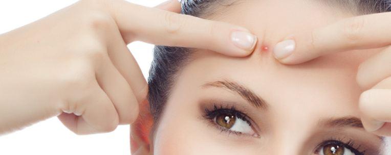Garlic Benefits For Skin Fixes acne