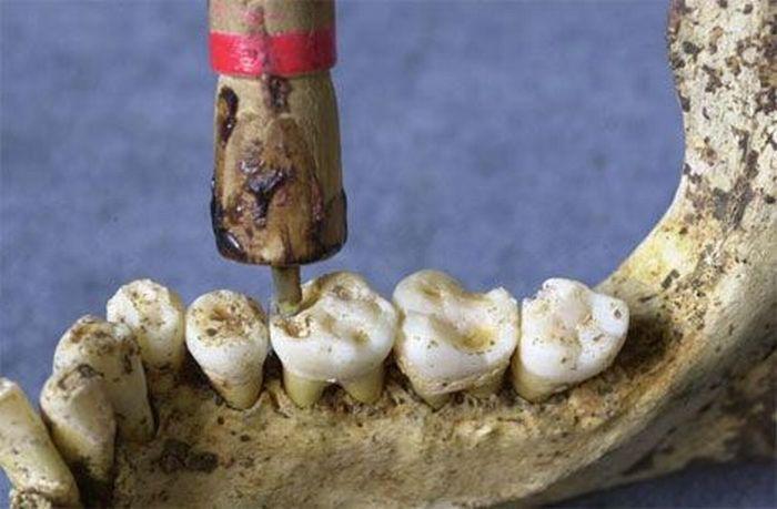 Sinistro! Veja aqui 15 instrumentos horripilantes usados pelos dentistas do passado