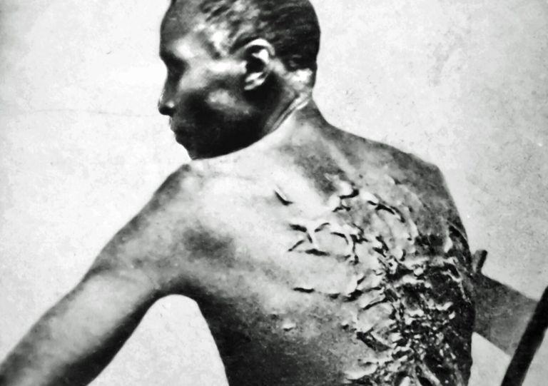 11 fotos raras da escravidão no Brasil que foram tiradas há mais de 150 anos