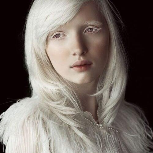 17 Pessoas Albinas Que Vo Surpreender Voc Pela Beleza