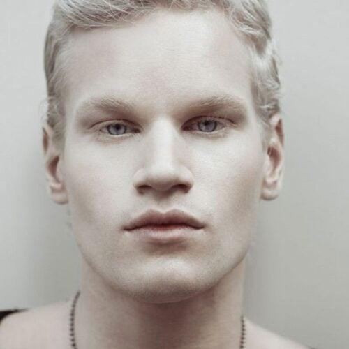 albino 11
