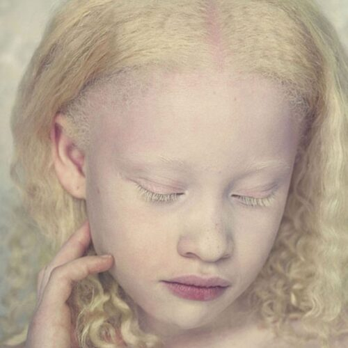 albino 14