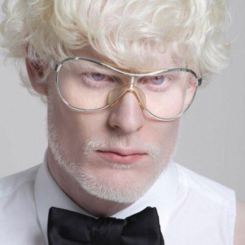 albino 15