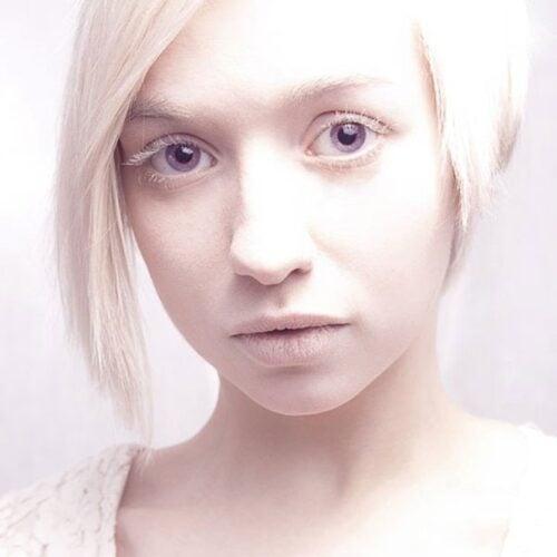 albino 4