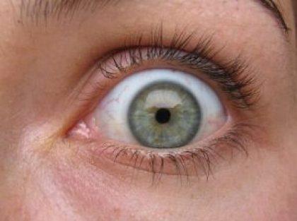 olhos verdes - viva-saude