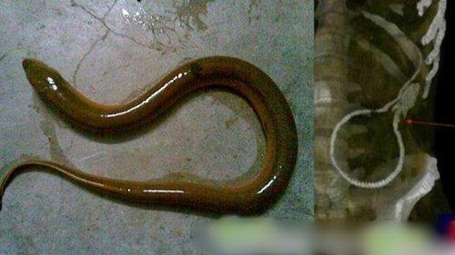 enguia-intestino