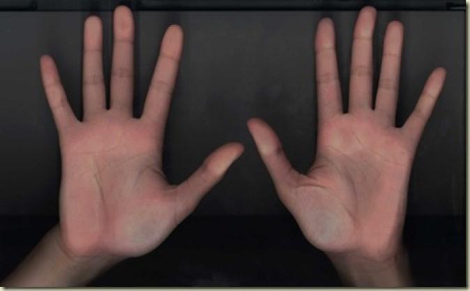 FCCO mãos[4]