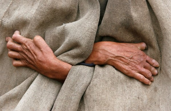 """The hands of Ren'er Futie, a 70-year-old leper from the Yi ethnic minority, are pictured as he stands outside his house in Dayingpan Village in Yuexi County, Sichuan province December 15, 2007. Dayingpan Village, known by locals in the surrounding area as """"ghost village"""", used to be the place of exile for lepers, and is now home to around 80 families, including 105 residents still suffering from the disease, local media reported. Picture taken December 15, 2007. REUTERS/Joe Chan (CHINA) - RTX4V4J"""