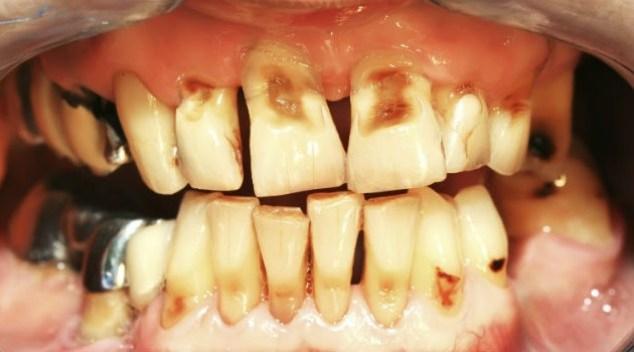 problemas-dentais-da-bulimia-7