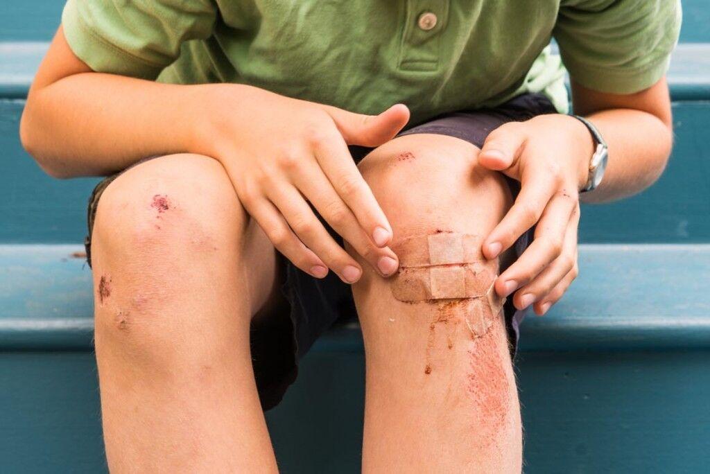 7 cicatrizes que todo mundo tem da época de infância