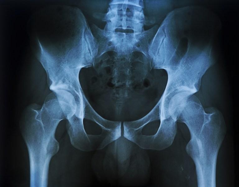 Uma pequena atitude do seu dia-a-dia pode estar enfraquecendo os seus ossos