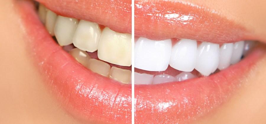 Aprenda A Deixar Seus Dentes Mais Brancos Em Apenas 2 Minutos Sem