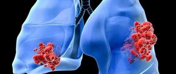 10-sinais-e-sintomas-do-cancer-de-pulmao-que-nao-devem-ser-ignorados-2-739x311