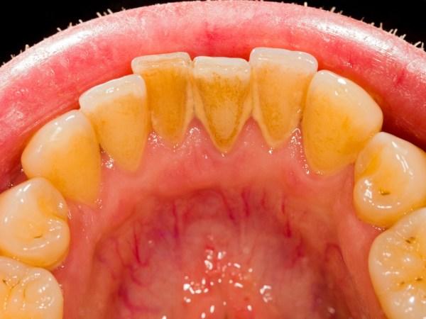 Elimine O Tartaro E Clareie Seus Dentes Usando Apenas Esse Remedio