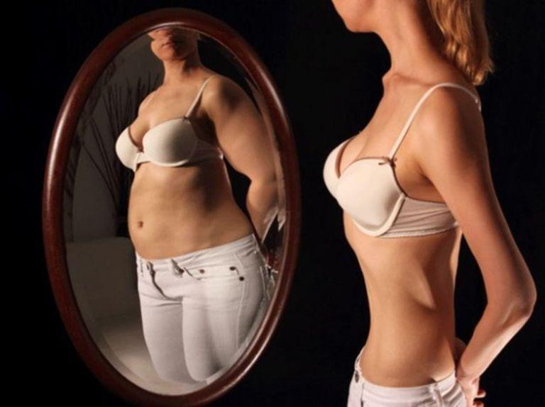 10 antes e depois de pessoas que venceram distúrbios alimentares
