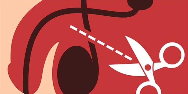O que acontece com o corpo do homem que faz vasectomia?