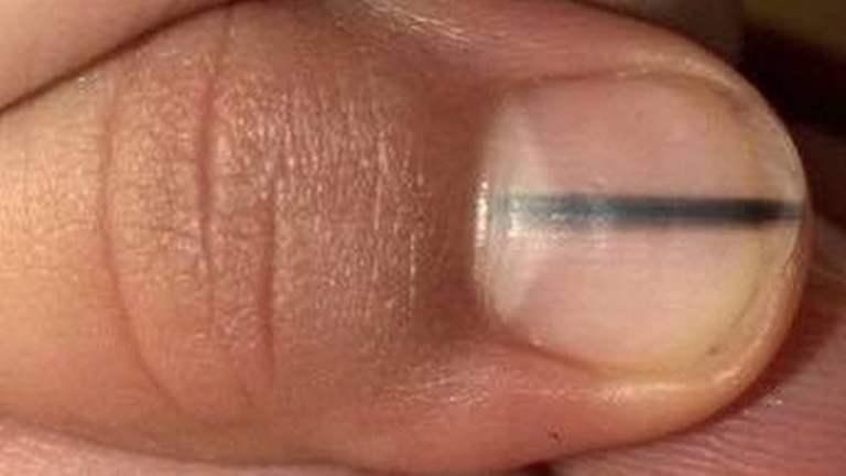 O que significa uma linha preta na unha?