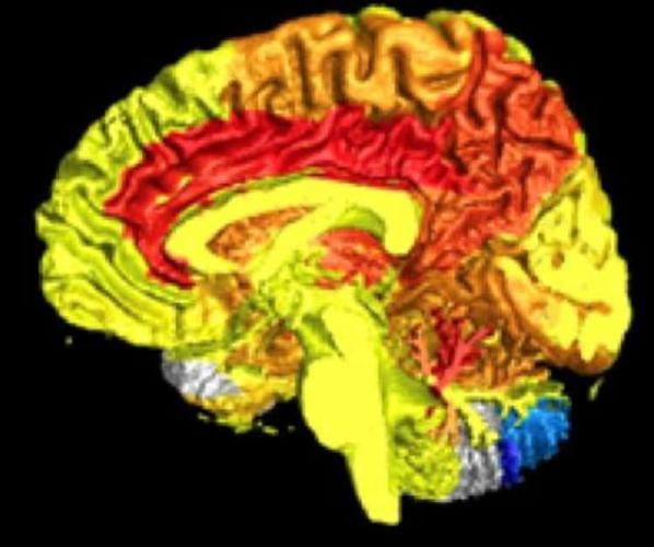 Women Brain Activity Neurosciencneews 598x500, Fatos Desconhecidos