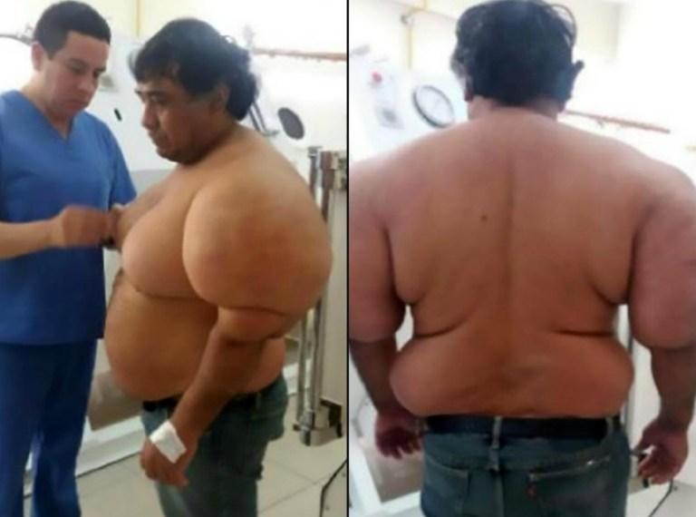 NÃO FOI 'BOMBA': Olhe bem o corpo desse homem e tente adivinhar o que fez isso com ele