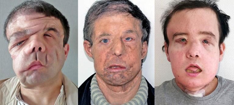 Esse homem é o primeiro humano a ter três faces