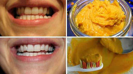 7 Truques Para Deixar Os Dentes Mais Brancos Terra Potiguar