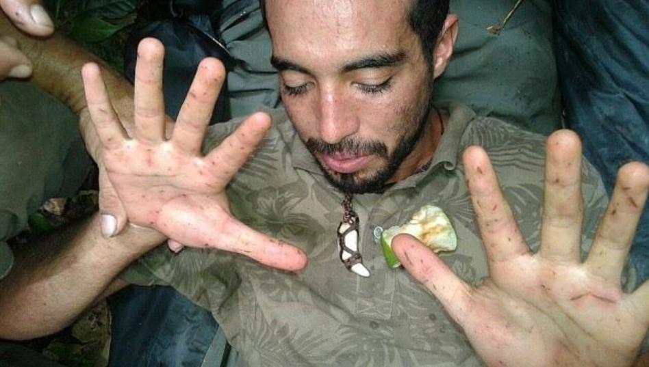 Homem diz que macacos salvaram sua vida após ficar perdido na floresta amazônica